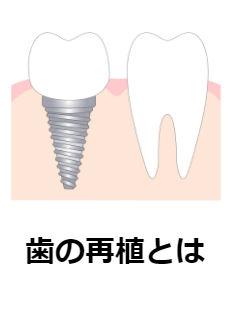 歯の再植(さいしょく)について知ってほしい7つのこと。