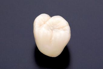 奥歯を白い歯にするにはどんな種類があるの?