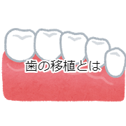 歯の移植について知ってほしい6つのこと。